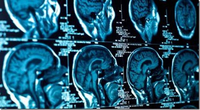 brain_scan02-549x300